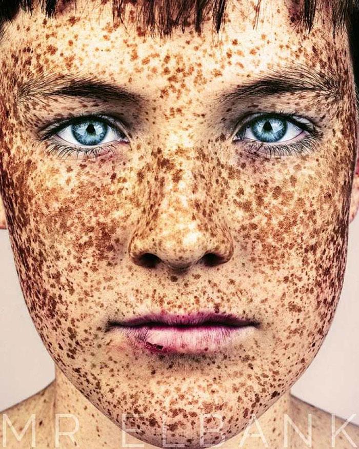 portrait-visage-avec-taches-de-rousseur-brock-elbank-21