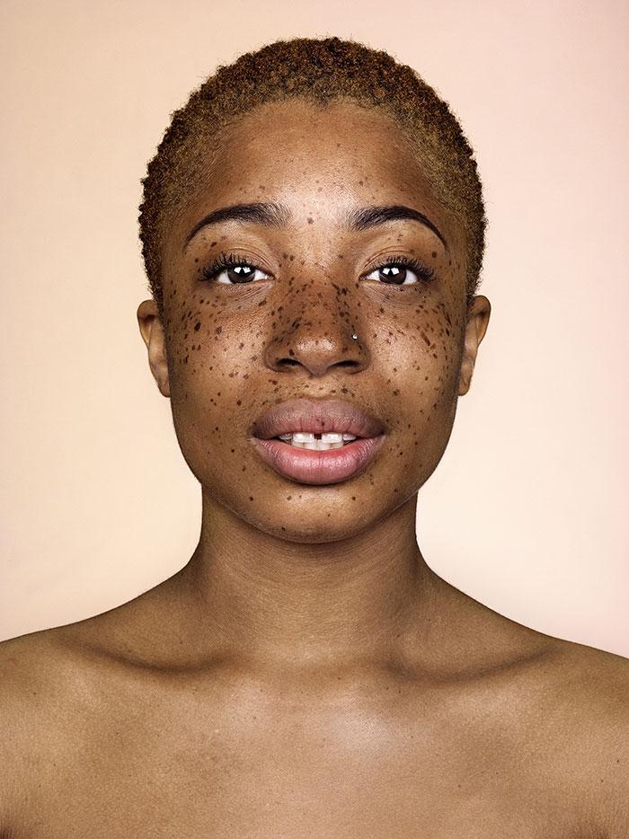 portrait-visage-avec-taches-de-rousseur-brock-elbank-23