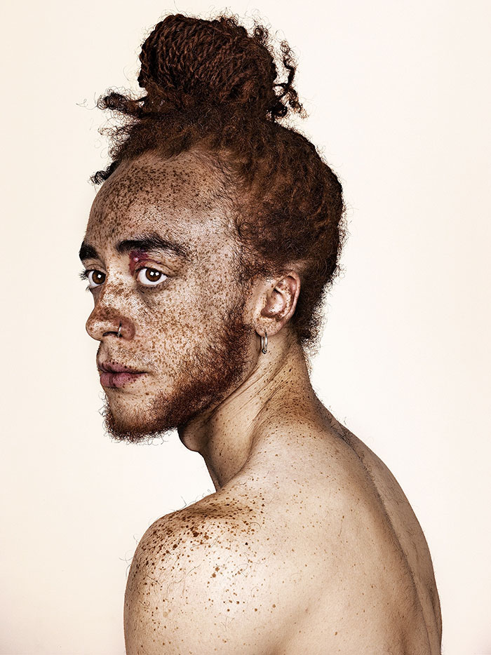 portrait-visage-avec-taches-de-rousseur-brock-elbank-26