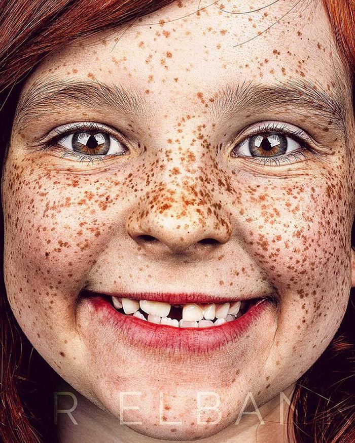 portrait-visage-avec-taches-de-rousseur-brock-elbank-3