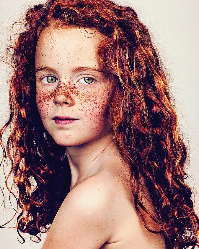 portrait-visage-avec-taches-de-rousseur-brock-elbank-31