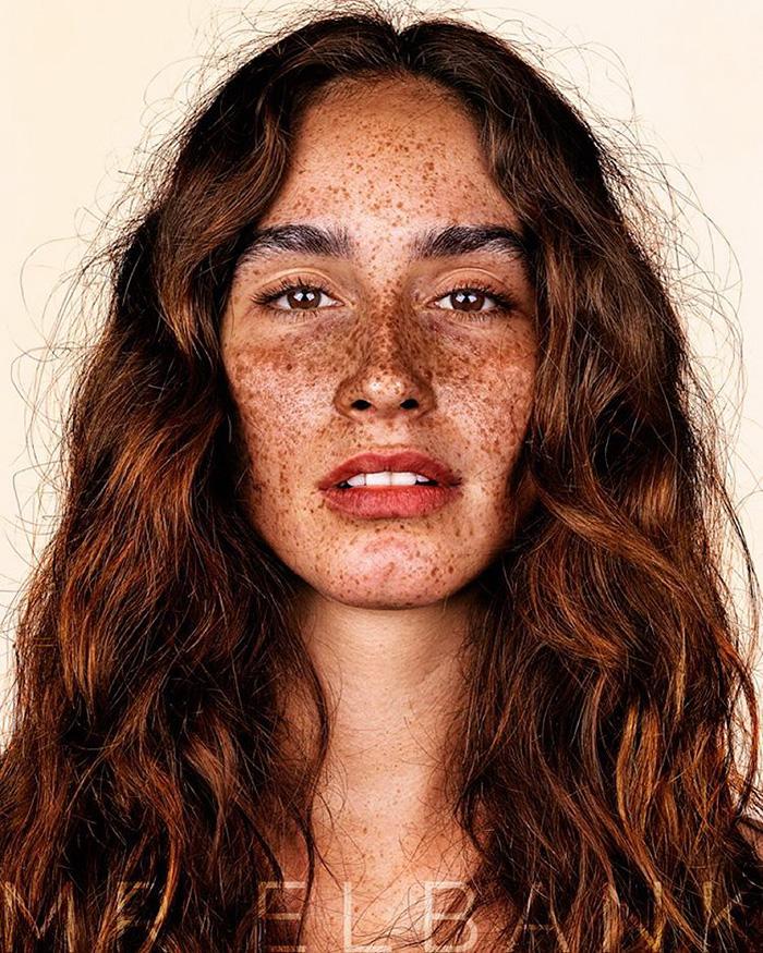 portrait-visage-avec-taches-de-rousseur-brock-elbank-4