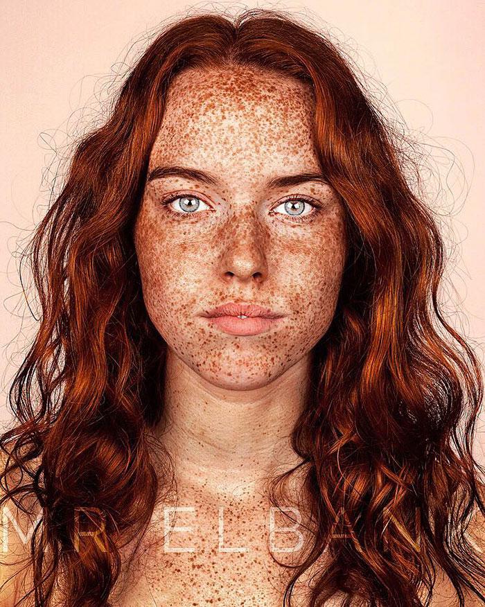 portrait-visage-avec-taches-de-rousseur-brock-elbank-7