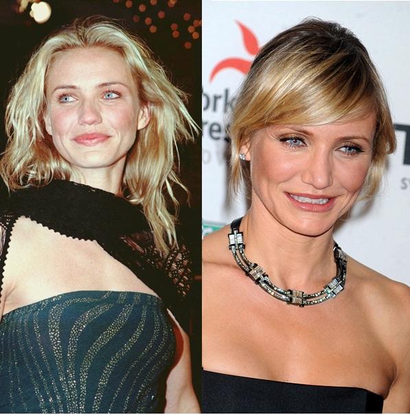 Cameron Diaz fait partie de celles qui utilisent rarement la chirurgie esthétique. Elle se serait apparemment fait refaire la poitrine. Par ailleurs, l'actrice assume parfaitement sa rhinoplastie d'il y a bien longtemps, due à une quadruple fracture du nez.