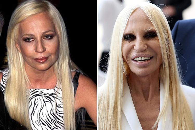 Donatella Versace Avant/Apres Chirurgie esthétique