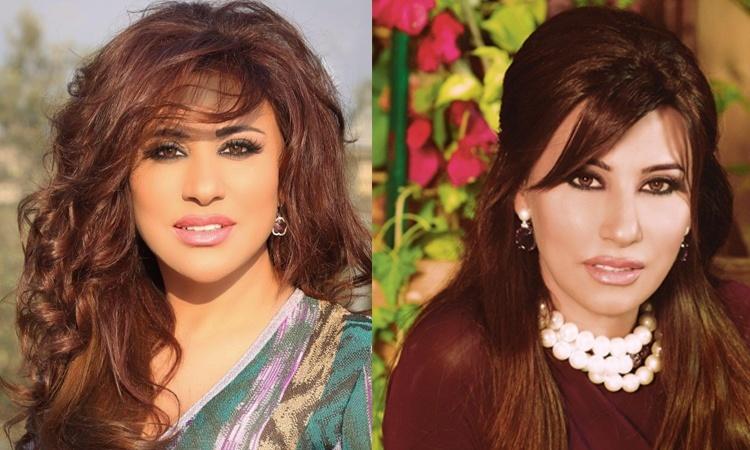 Najwa Karam Avant/Apres Chirurgie esthétique