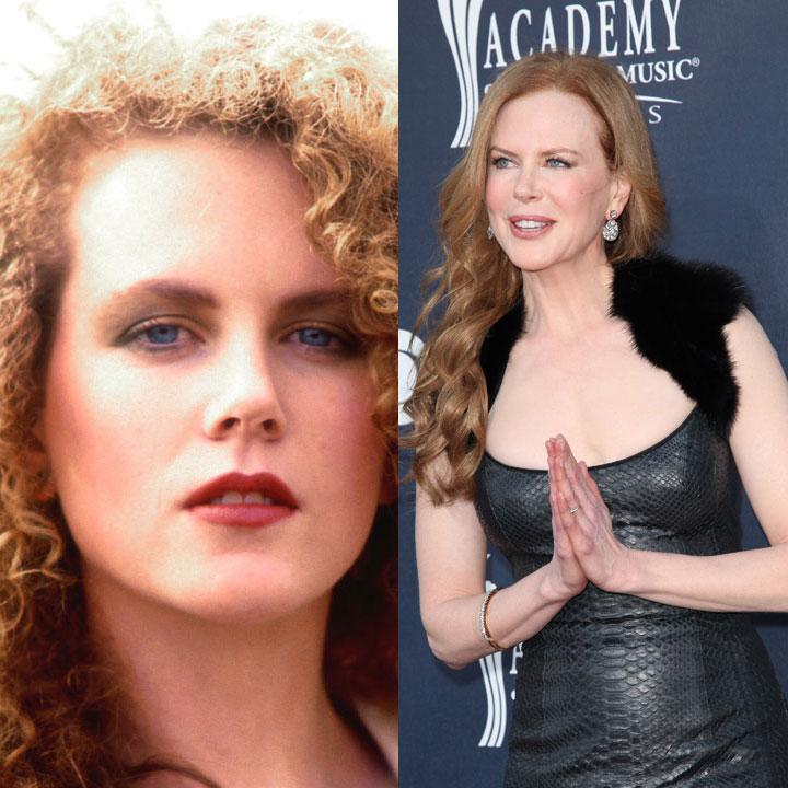 On se souvient de la beauté de Nicole Kidman dans Moulin rouge. Depuis la belle a eu recours à la chirurgie esthétique. Résultat : front et visage quasi inexpressifs et surtout des lèvres regonflées.
