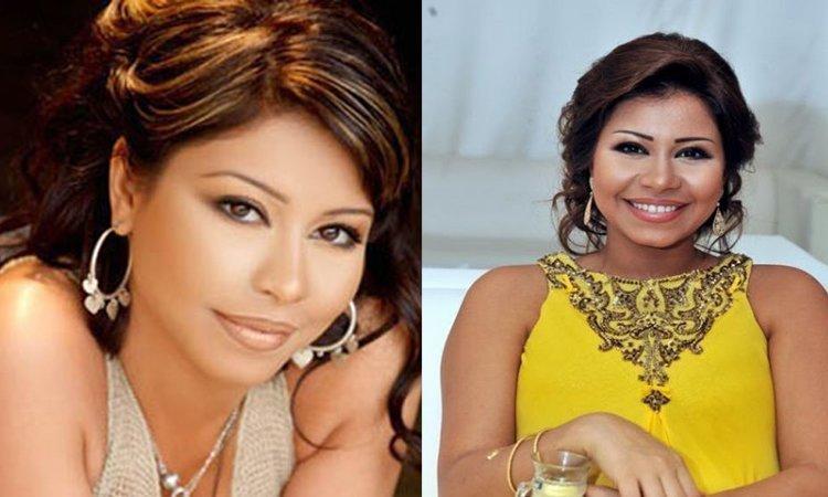 Sherine Abdel Wahhab Avant/Apres Chirurgie esthétique